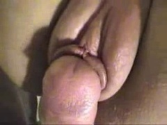 Laura rectal suite 1
